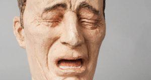dolor en la disestesia